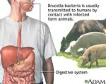 Brucellosis Outbreak in China Threatens 350 Million