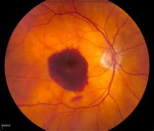 Resveratrol could cure blindness