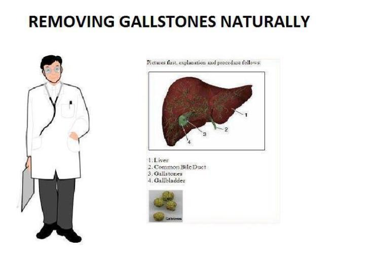 REMOVING GALLSTONES NATURALLY…