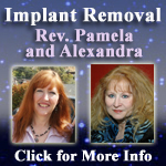 remove-implants-150