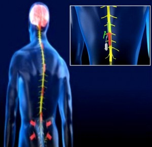 implants in back and spine