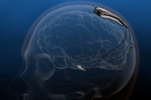 FDA Approves Brain Implant to Monitor and Autonomously Respond to Epileptic Seizures