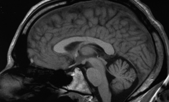 'Putting the next generation of brains in danger'