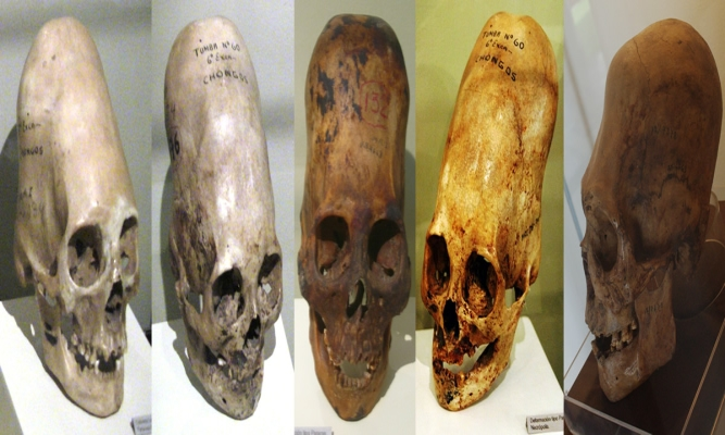 DNA Analysis of Paracas Elongated Skull Released – With Incredible Results – A MUST READ!!!!!!!