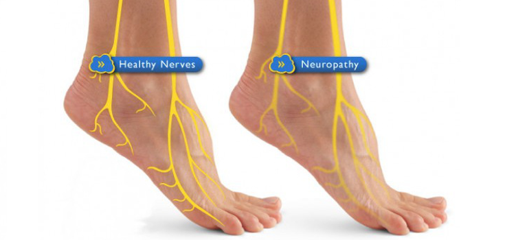 6 Natural Solutions for Diabetic Neuropathy