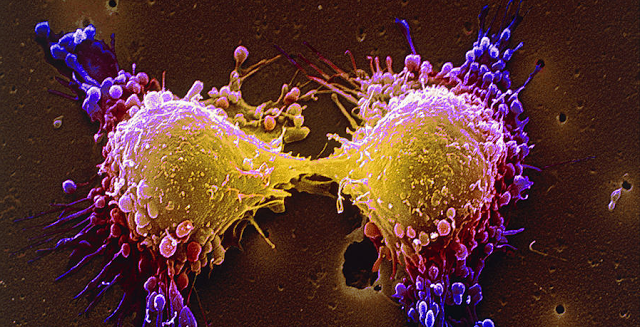 Did You Know Every Person Has Cancer Cells in the Body? Stop Them from Becoming Tumors!