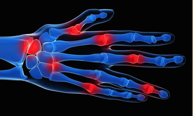 12 Alternative Treatments For Arthritis Kill The Pain Relieve Inflammation