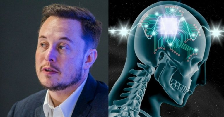 Elon Musk-Linked Scientists Are Developing Brain Probes for DARPA