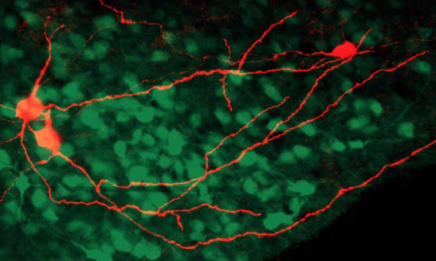 The Insular Cortex Processes, and Drives Learning from Pain